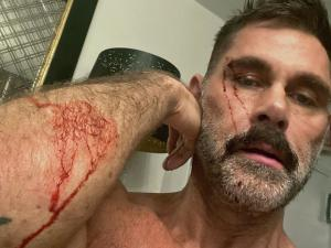 Bad Romance: Jack Mackenroth Breaks Up with Dolf Dietrich (and It Is Not Pretty)
